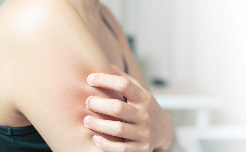身體乳止癢有效嗎?人氣商品推薦,讓你皮膚不再乾癢!